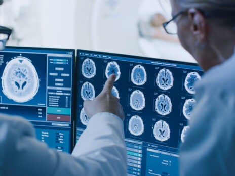 Automated image analysis: A route to transforming healthcare?